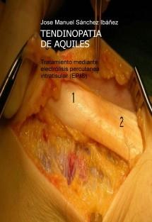 TENDINOPATÍA DE AQUILES