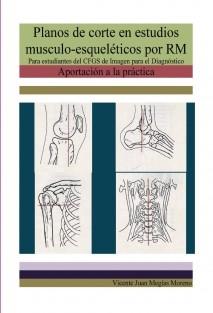 Planos de corte en estudios musculo-ésqueléticos por RM