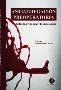 Antiagregación preoperatoria : Entre la evidencia y la suposición