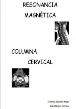 Resonancia Magnética Columna Cervical