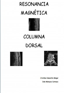 Resonancia Magnética Columna Dorsal