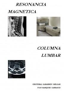 Resonancia Magnética Columna Lumbar