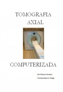 Tomografía Axial Computerizada