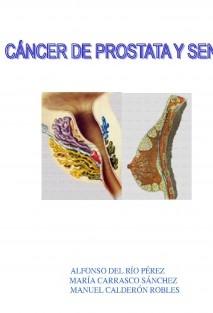 CANCER DE PROSTATA Y DE SENOS