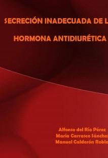 SINDROME DE SECRECION INADECUADA DE LA HORMONA ANTIDIURÉTICA