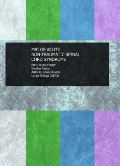 MRI OF ACUTE NON-TRAUMATIC SPINAL CORD SYNDROME