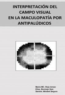INTERPRETACIÓN DEL CAMPO VISUAL EN LA MACULOPATÍA POR ANTIPALÚDICOS
