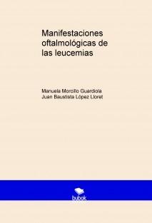 Manifestaciones oftalmológicas de las leucemias