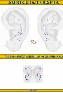 Auriculoterpia Práctica Terapeútica